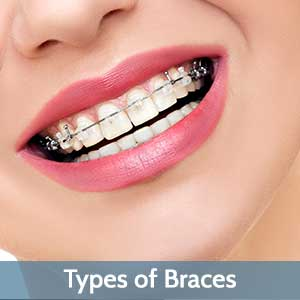Types of Braces near Central Omaha