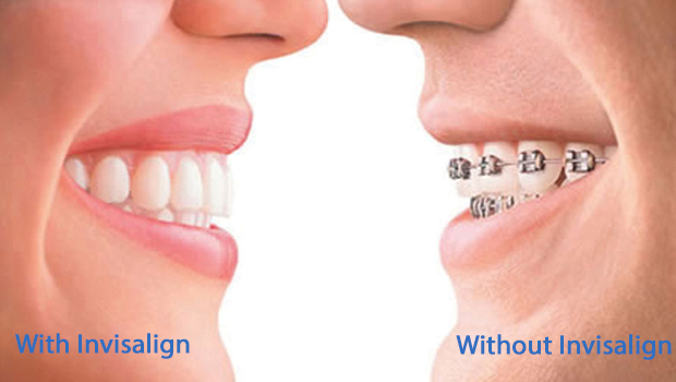 West Omaha Invisalign