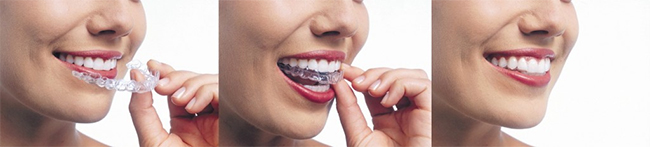 Invisalign in Central Omaha